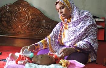 В Бангладеш родились близнецы с одной головой на двоих (9 фото) - «Хорошее настроение»
