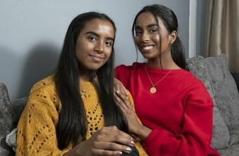 Когда-то обреченные сиамские близнецы строят планы на учебу в университете (13фото)