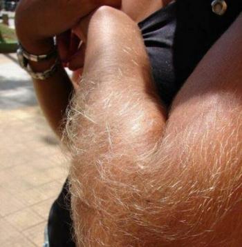 Стройные волосатки: зато зимой не холодно (21фото)