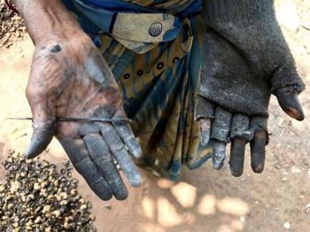 Черные обожженные руки женщин, занятых на обработке кешью - «Хорошее настроение»