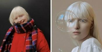 Настя Жидкова: модель-альбинос с нестандартной внешностью (14фото)