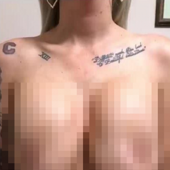 Попросила уменьшить обвисшую грудь и что получилось (5 фото)