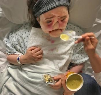 Шокирующая история надежды: после неудачной попытки самоубийства девушка получила новое лицо (15 фото)