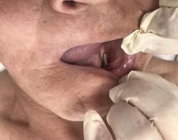 В Бурятии мужчина прожил 27 лет с болтами вместо зубов (3фото)